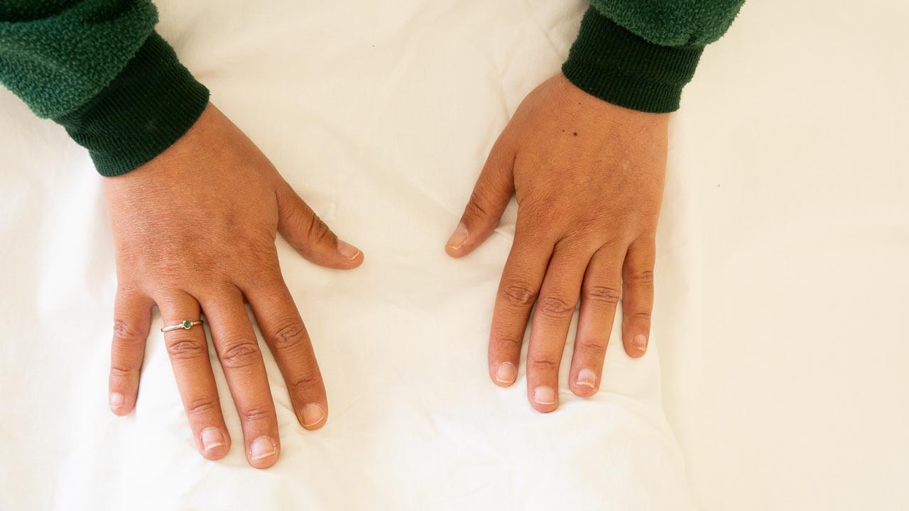 כפות ידיים נוגעות במטופלת מכוסה בסדין לבן
